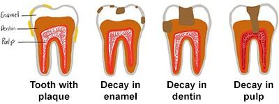 bitty bites cavity prevention tooth illustration